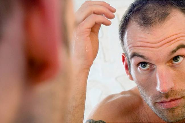 Natural Hair Loss Treatment for Men – It Is Very Simple and Easy to Apply Them