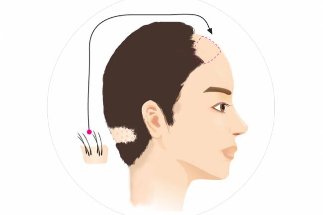Is the hair transplant good effect? Can judge from these 3 points