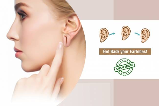 Earlobe Repair Treatment with High Success Rate in Delhi