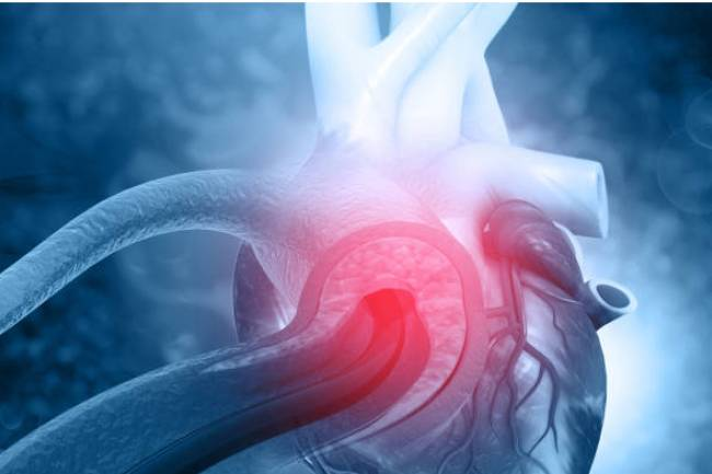 Best Treatment for Heart Blockage