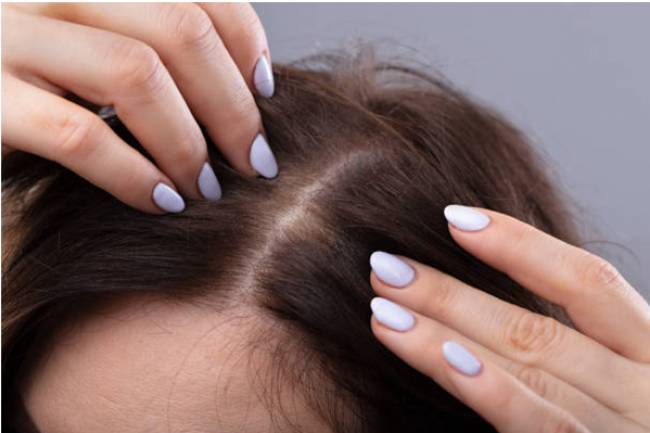 What are the Best Treatments for Female Hair Thinning?