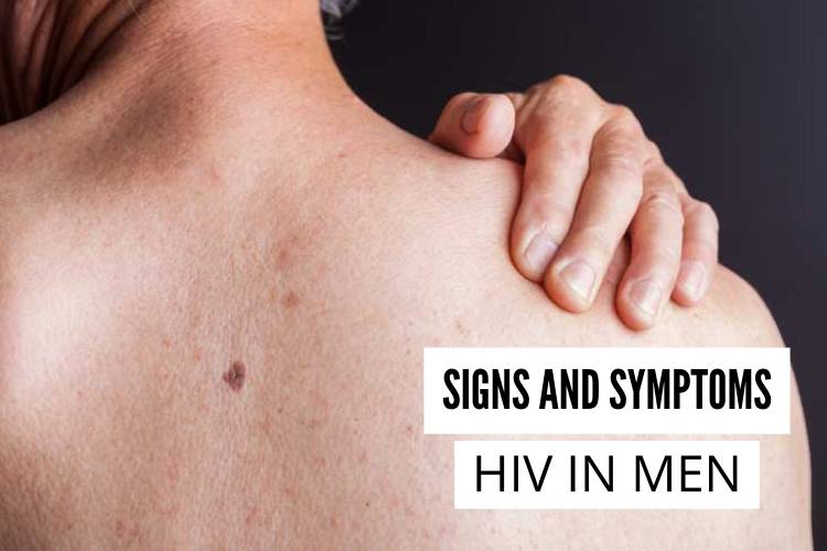 Signs and Symptoms of HIV in Men