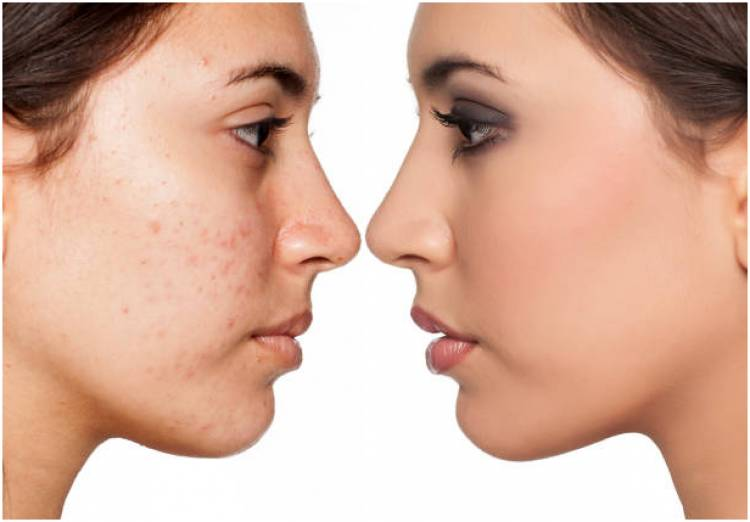 What Are The Types Of Acne Treatment Available?